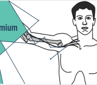 UPPER LIMB NEURODYNAMIC TESTS ZUR DIAGNOSTIK PERIPHER NEUROPATHISCHER SCHMERZEN