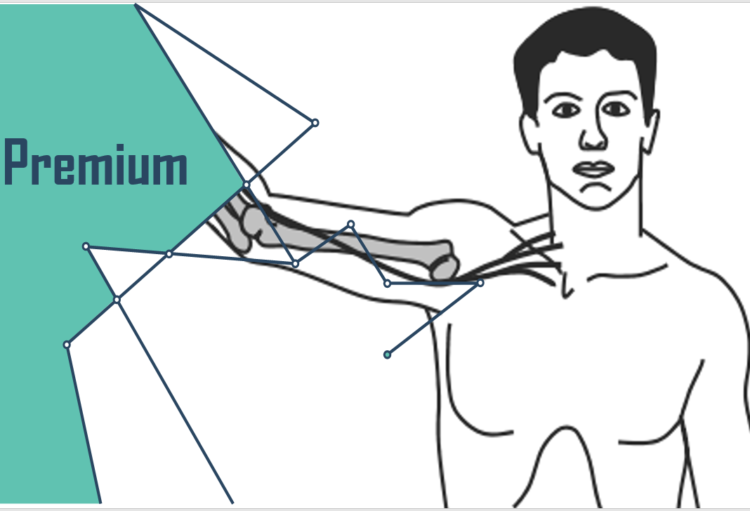 UPPER LIMB NEURODYNAMIC TESTS ZUR DIAGNOSTIK PERIPHERER NEUROPATHISCHER SCHMERZEN
