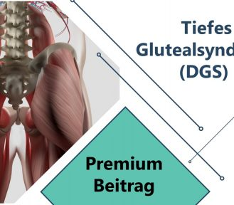 Tiefes Glutealsyndrom (DGS)